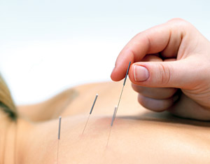 acupuncture - Copyright – Stock Photo / Register Mark