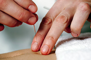 acupunctre - Copyright – Stock Photo / Register Mark