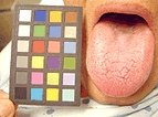 Man's tongue and calibration chart. - Copyright – Stock Photo / Register Mark