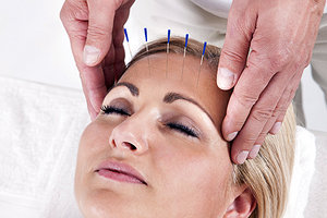 head acupuncture - Copyright – Stock Photo / Register Mark