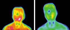 Infrared images for diabetes subject - Copyright – Stock Photo / Register Mark