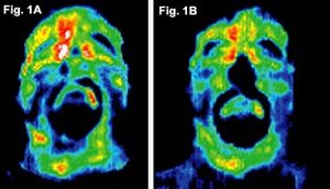 Before and after infrared images of the face of first volunteer. - Copyright – Stock Photo / Register Mark