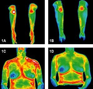 Infrared images of arms and torso before and after treatment. - Copyright – Stock Photo / Register Mark
