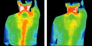 Infrared images of back. - Copyright – Stock Photo / Register Mark