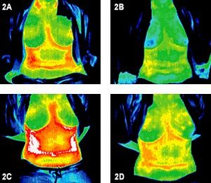 Infrared images of two torsos before and after treatment. - Copyright – Stock Photo / Register Mark
