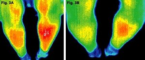 Before and after infrared images of the lower legs of patient. - Copyright – Stock Photo / Register Mark
