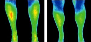 Infrared images of legs. - Copyright – Stock Photo / Register Mark