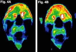 Before and after infrared images of the face of a patient.