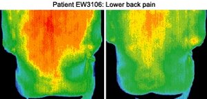 Infrared images of patient. - Copyright – Stock Photo / Register Mark