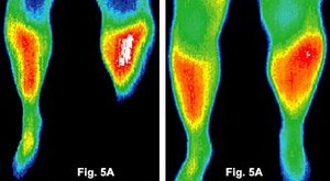 Before and after infrared images of the feet of a patient.