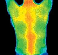 Thermogram of the back of a very healthy woman. - Copyright – Stock Photo / Register Mark