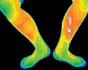 Thermogram of the inside of the left leg of a woman with liver cancer. - Copyright – Stock Photo / Register Mark