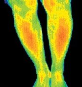 Thermogram of a woman with a digestive problem. - Copyright – Stock Photo / Register Mark