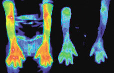 Infrared images of a woman with arthritis. - Copyright – Stock Photo / Register Mark