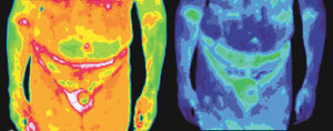 Infrared images of a male with prostate cancer. - Copyright – Stock Photo / Register Mark