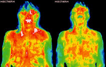 Infrared images showing body surface temperature distribution. - Copyright – Stock Photo / Register Mark