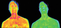Infrared images of the face and shoulder of a male with genital herpes. - Copyright – Stock Photo / Register Mark