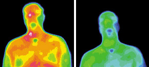 Infrared images for migraine patient - Copyright – Stock Photo / Register Mark