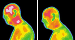 Infrared images for subject brain tumor - Copyright – Stock Photo / Register Mark