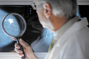 mammography - Copyright – Stock Photo / Register Mark
