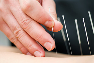 Master Tung's Five Zang Channel System - Copyright – Stock Photo / Register Mark