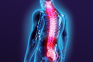 Acupuncture and the Treatment of Spinal Stenosis