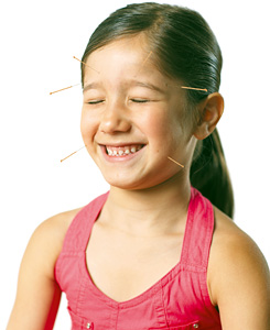 Pediatric Acupuncture - Copyright – Stock Photo / Register Mark