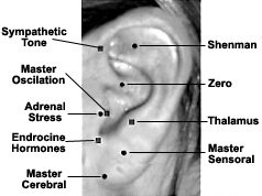 Auricular master points. - Copyright – Stock Photo / Register Mark