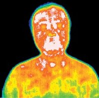 Infrared picture of a patient before acupuncture treatment.