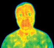 Infrared picture of a patient after first acupuncture treatment.