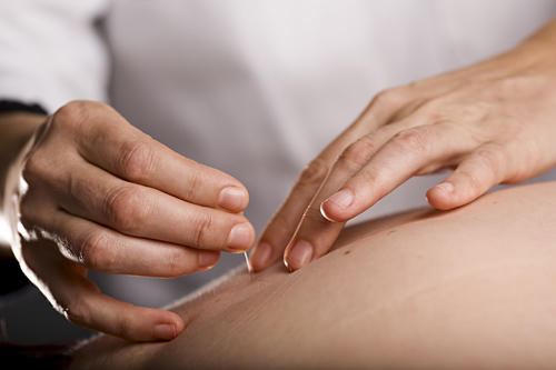 Needle Sequencing, the Root of How Acupuncture Works